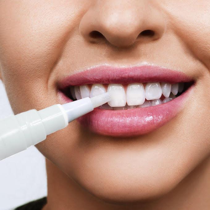 Penna sbiancante per denti - Penna sbiancante per denti naturali.
