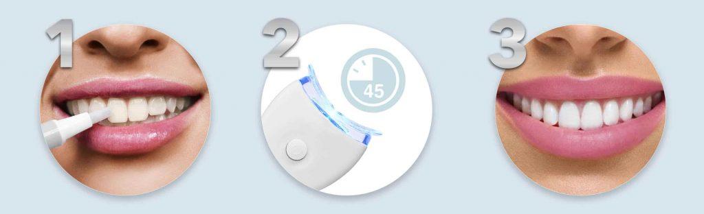 LED Teeth Whitening Kit - Non Peroxide Whitening in 3 steps