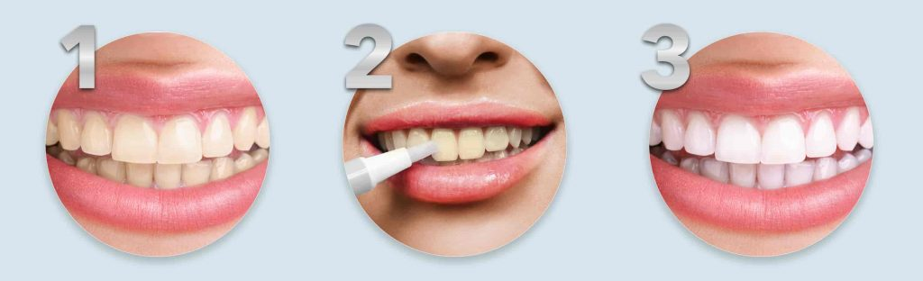 Natural teeth whitening pen - Non peroxide teeth whitening pen