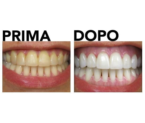 Sbiancamento dei denti prima e dopo