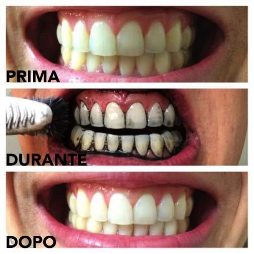 denti di carbone che imbiancano prima, durante e dopo